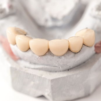 Dental Prothetic laboratory, technical shots