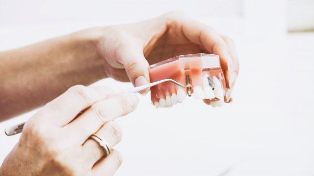 Braki zębowe. Konsekwencje utraty jednego lub wielu zębów.